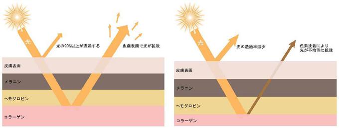 若い皮膚/老化した皮膚